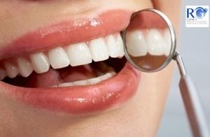 http://oferplan-imagenes.diariosur.es/sized/images/Limpieza_dental_y_curetaje_clinica_rg_malaga3_thumb-300x196.jpg